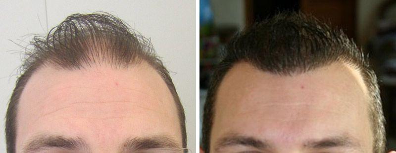 Prix de coupe de cheveux coiffeur pour les coupes de cheveux minsk
